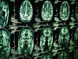 Наночастицы способствуют удалению опухолей головного мозга