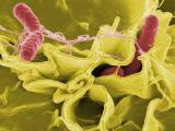 Учёные смогли выявить гипер-ядовитые штаммы сальмонеллы