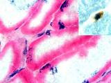 Живые стволовые клетки обнаружены в человеческом теле спустя 17дней после смерти