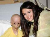 У больных прогерией появилась надежда