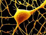 Удаление одного гена может вызвать аутизм