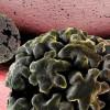 Вирус папилломы человека найден в опухолях простаты