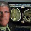 Голодание делает опухоли мозга более уязвимыми к радио- и химиотерапии