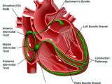 Виртуальное сердце дает новое представление о пороке человеческого сердца