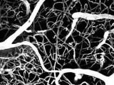Новое исследование поможет сократить стоимость оборудования двухфотонной микроскопии