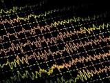Ученые разработали методику лечения эпилепсии с помощью пересадки нервных клеток