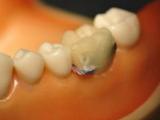 Электронный зуб передаст информацию о пациенте