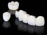 Особенности бюгельных зубных протезов