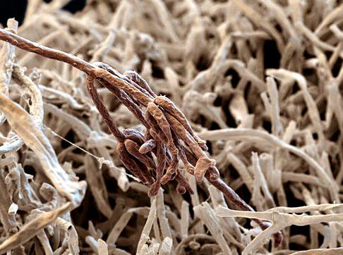 Помогает растению поедать насекомых