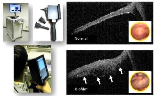 Ручной 3D-сканер может упростить медицинский осмотр