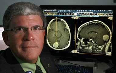 Голодание делает опухоли мозга более уязвимямы к радио- и химиотерапии