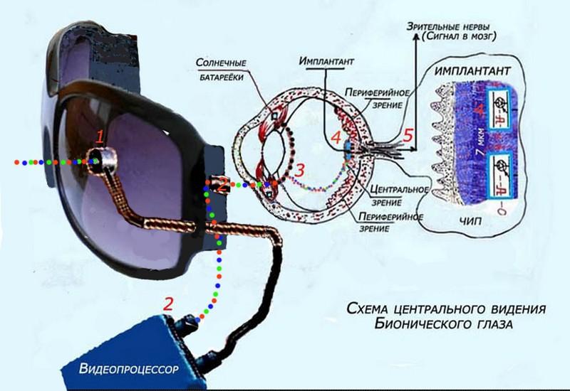 Бионический глаз восстановил зрение слепому мужчине.