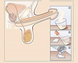Spermiogramm2