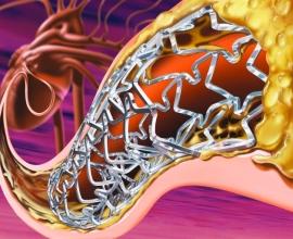 как понизить уровень холестерина в организме человека